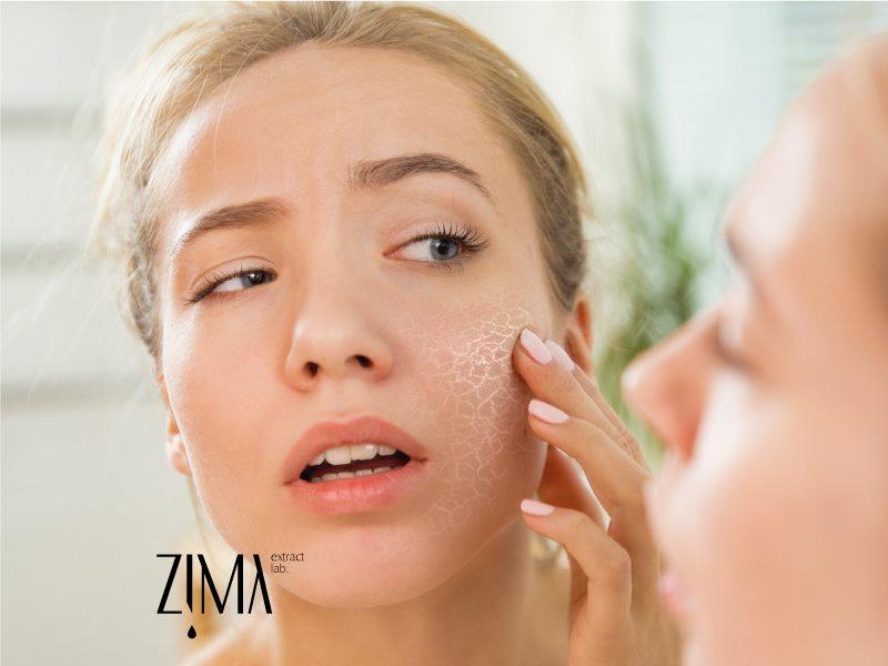خشکی پوست صورت و راهکارهایی برای رفع آن