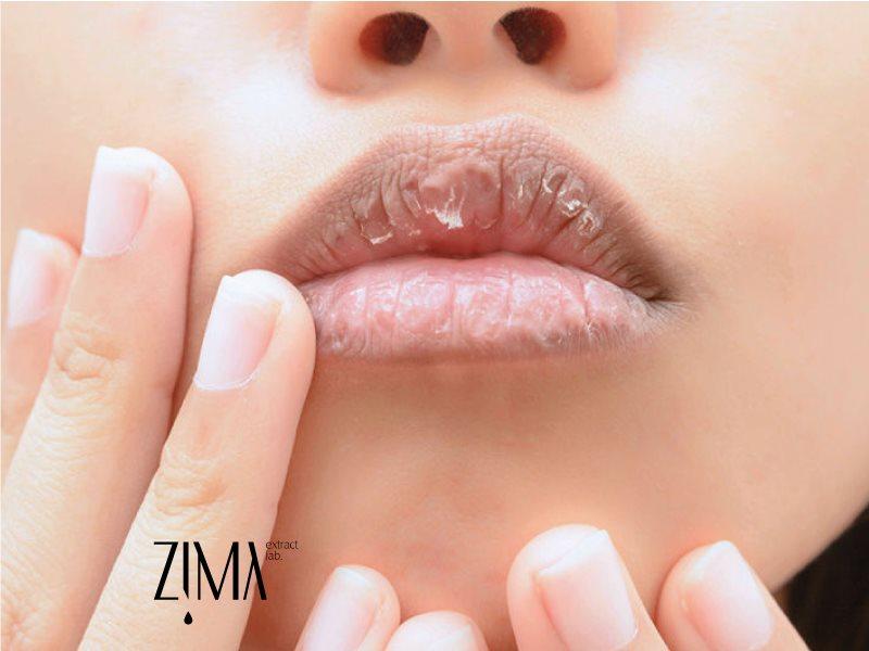 روش ها و راهکارهای درمان خشکی لب ها